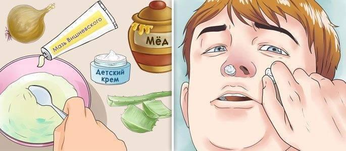 Лечение гайморита конским каштаном