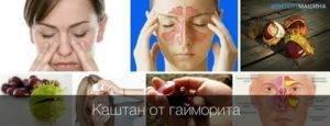 6 способов лечения гайморита каштаном в домашних условиях: турунды, холодные ингаляции, промывание носовых ходов, капли, массаж; рецепты, как приготовить и применять конский каштан