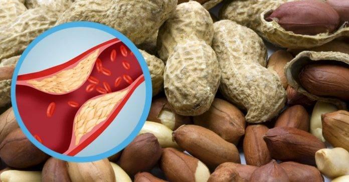 Арахис: полезные свойства для организма человека, противопоказания, кроме подагры, и крепит или слабит кишечник, понижает или повышает давление, чем опасен?