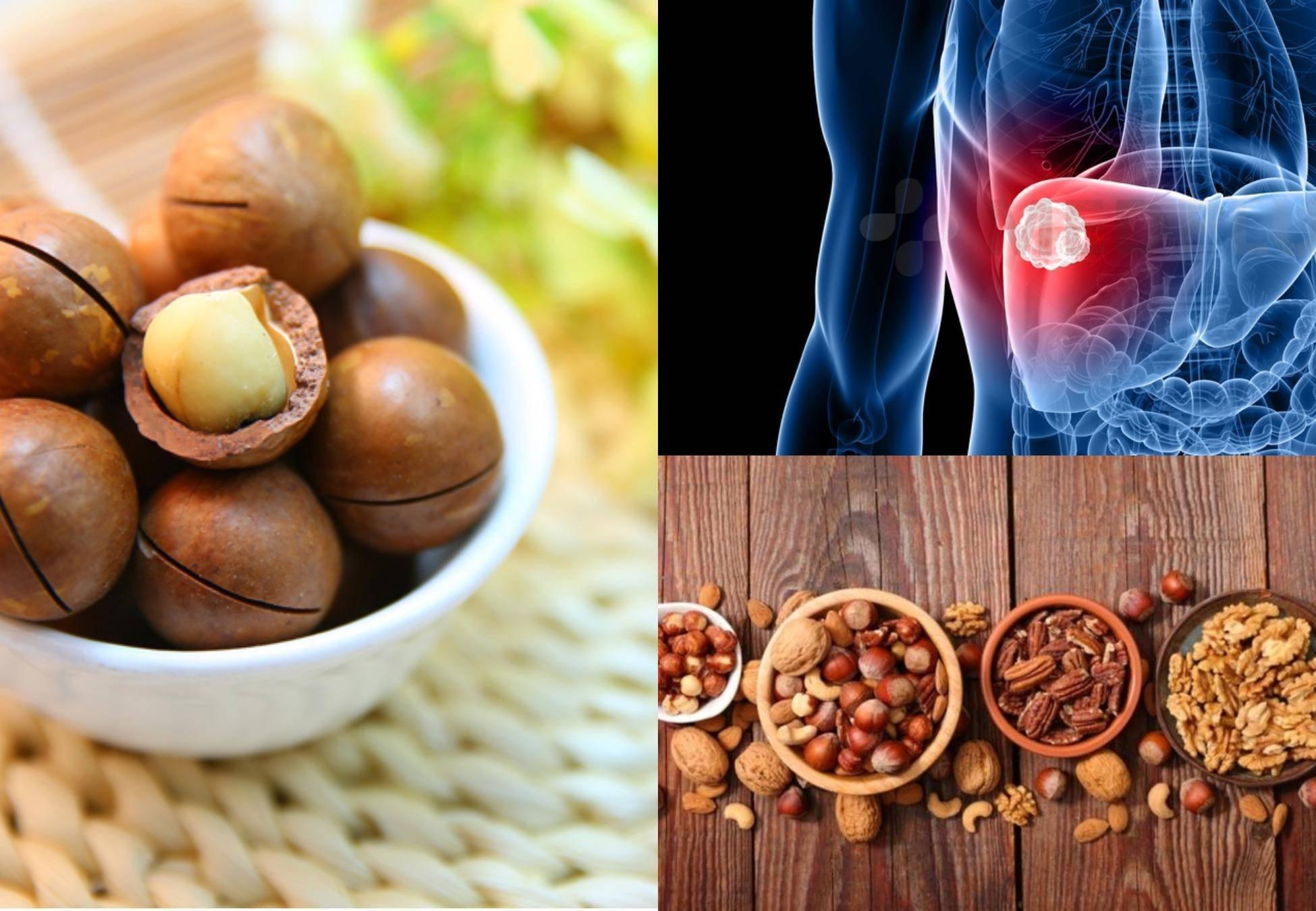 7 продуктов, вредных для печени человека: список самой тяжелой и опасной еды