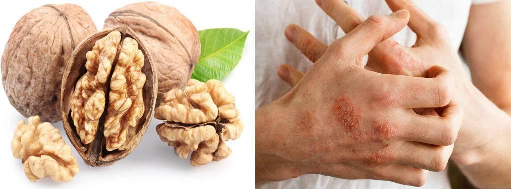 Полезен ли цикорий для печени или вреден — 6 фактов о его влиянии