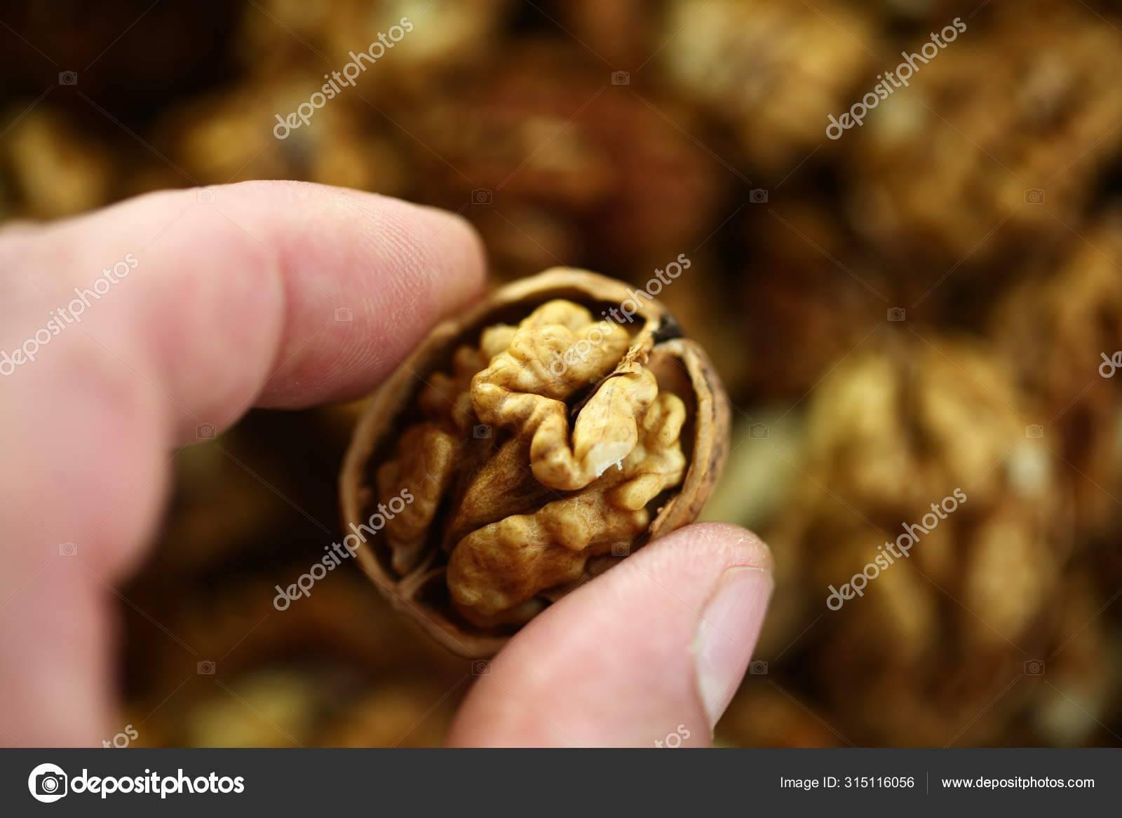 Какие орехи вызывают аллергию? - семейная клиника опора г. екатеринбург