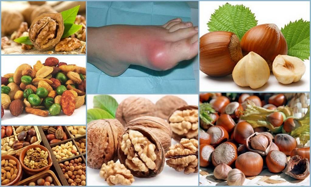Можно ли употреблять орехи при запоре