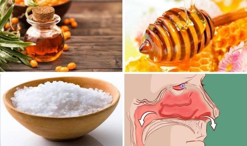 Каштаны от гайморита: лечение в домашних условиях, рецепт и отзывы