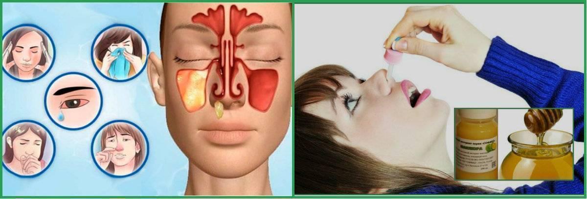 Как применять каштан для лечения гайморита