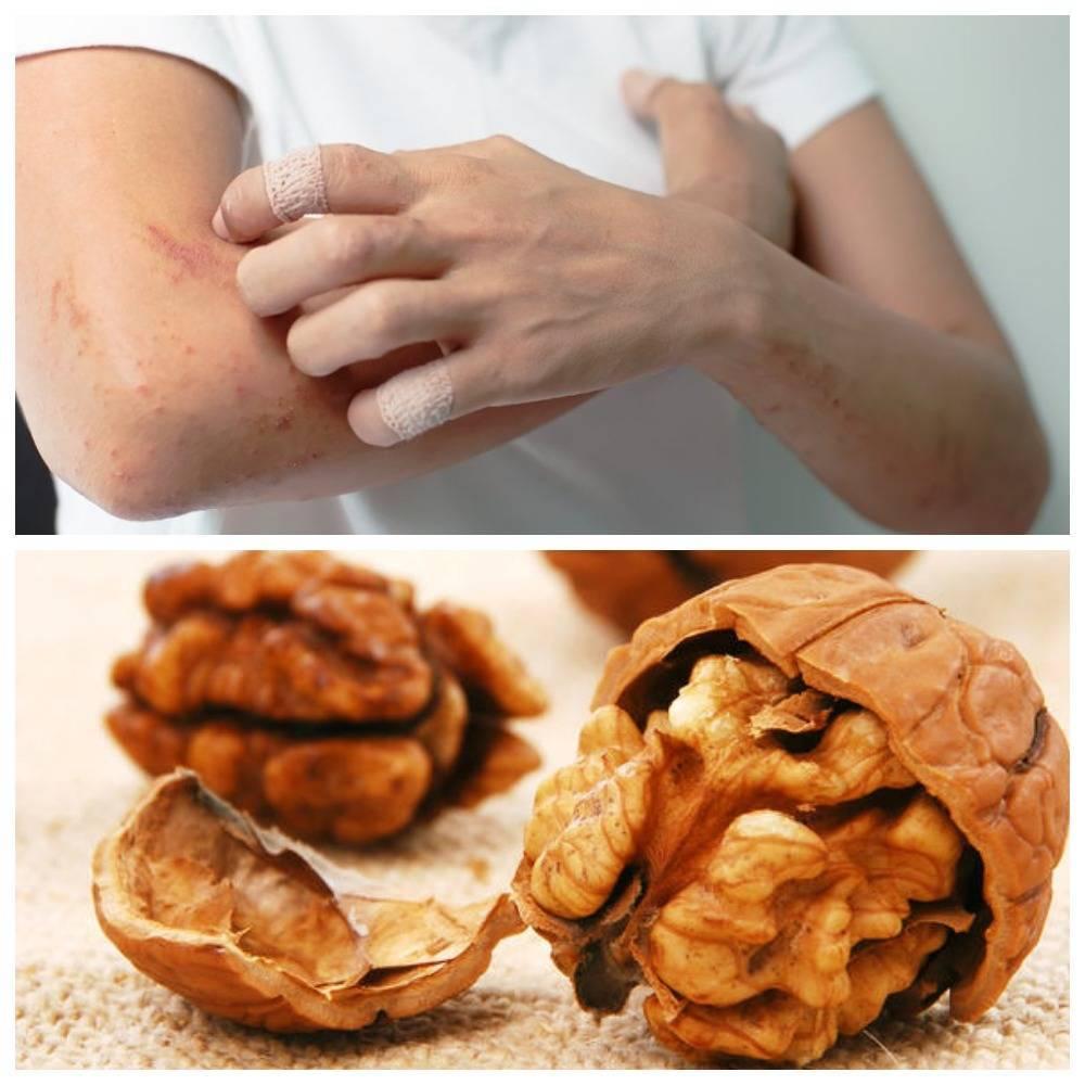Аллергия на грецкие орехи: симптомы у взрослых, у детей